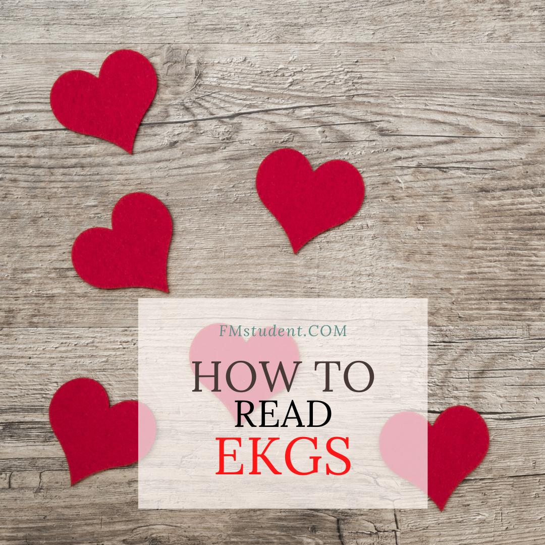 How to Read EKGs